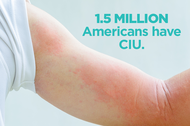 Hives That Won't Go Away: The Basics of CIU | Asthma and