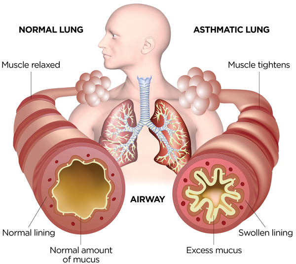 What Happens in Your Airways When You Have Asthma?   Asthma and Allergy  Foundation of AmericaAsthma and Allergy Foundation of America