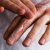 eczema-and-cream